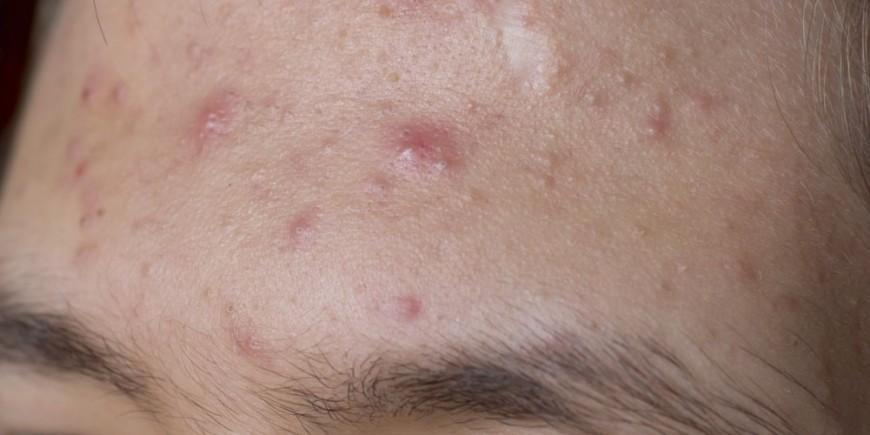 Akne: Anzeichen, Symptome, Ursachen, Behandlung