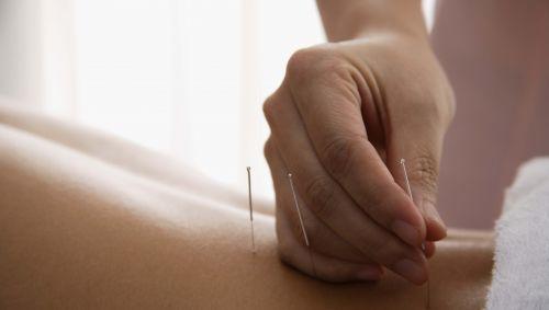 Das Bild zeigt Akupunkturnadeln, die gesetzt werden.