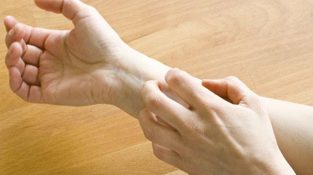 Das Bild zeigt eine Hand, die einen Unterarm kratzt.