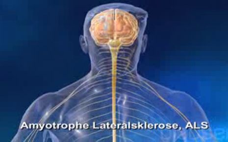 ALS amyotrophe Lateralsklerose Video