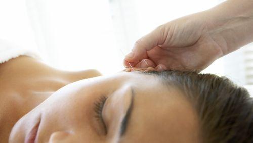 Das Bild zeigt eine Frau, der eine Akupunkturnadel ins Ohr gesetzt wird.