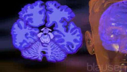 Alzheimer Video
