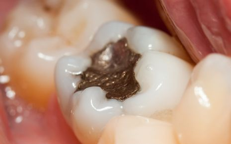 Zahn mit Amalgamfüllung