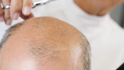 schädigen braids die haare