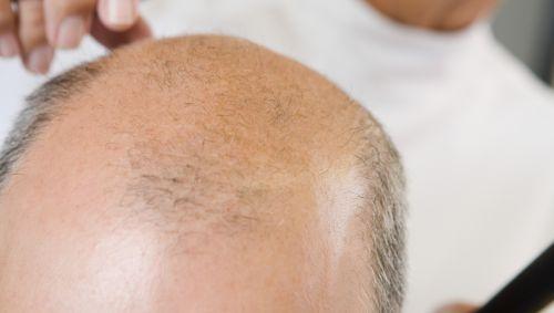 Das Bild zeigt einen Mann mit Glatze beim Friseur.