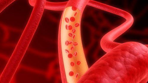Das Bild zeigt eine Arterie.