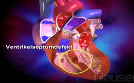 Angeborener Herzfehler Video