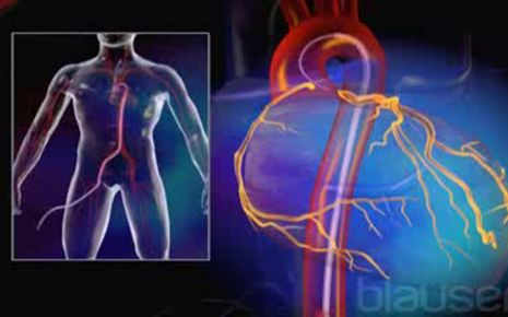 Angiogramm Video