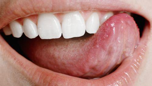 Eine Frau fährt mit ihrer Zunge über die Zähne.