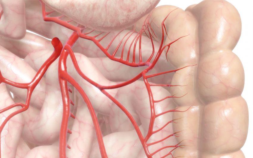 Das Bild zeigt eine illustrierte Arterie.