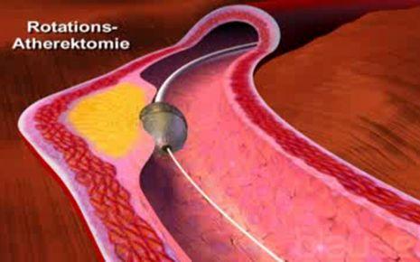 Atherektomie Video