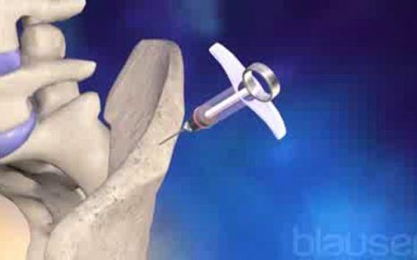 Autologe Stammzelltransplantation Video