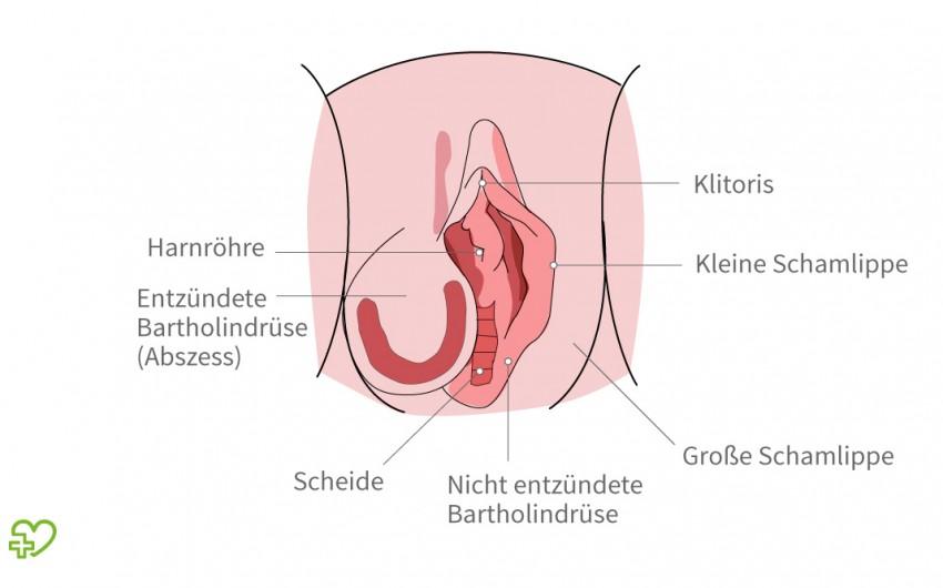 Das Bild zeigt einen Abszess an der Bartholin-Drüse.