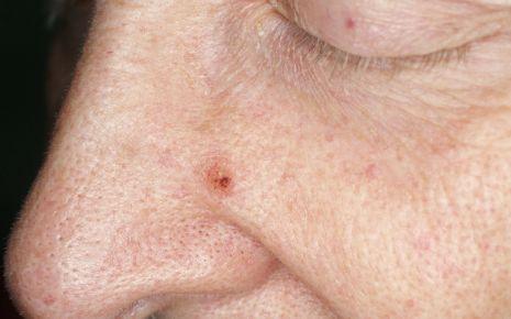 Das Basaliom ist die häufigste Form des hellen Hautkrebses.