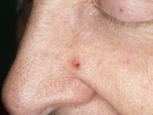 Ein Basaliom an der Nase (© Dr.med.J.P.Müller/OKAPIA).