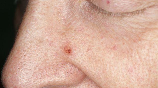 Ein Basaliom (Basalzellkarzinom) an der Nase eines Mannes.