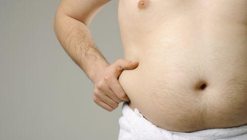 Das Bild zeigt einen übergewichtigen Männerbauch.