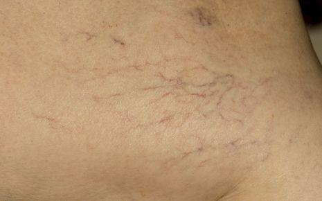 Krampfadern: Haut mit Besenreisern.