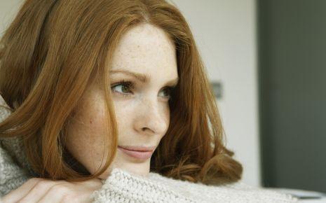 Das Bild zeigt eine Frau mit Sommersprossen und roten Haaren.
