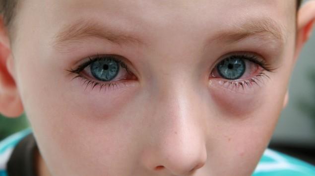 Das Bild zeigt einen Jungen mit geröteten, geschwollenen Augen.