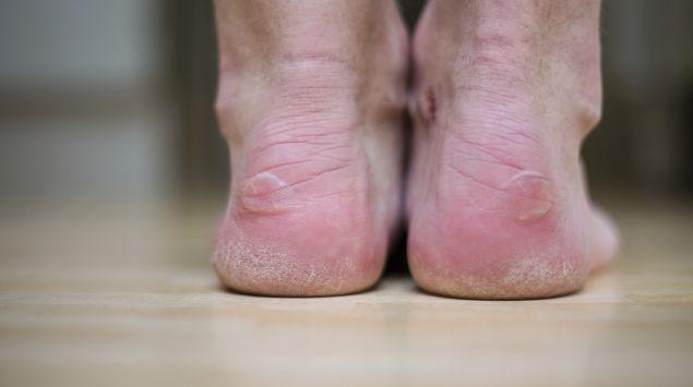 Das Bild zeigt Füße mit Blasen.