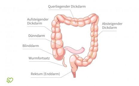 eileiterentzündung dauer