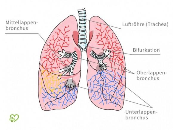 Das Bild zeigt den schematischen Aufbau der Bronchien.