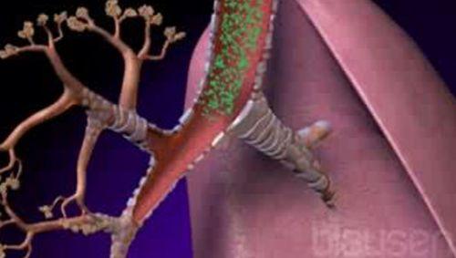Bronchienerweiternde Medikamente Video
