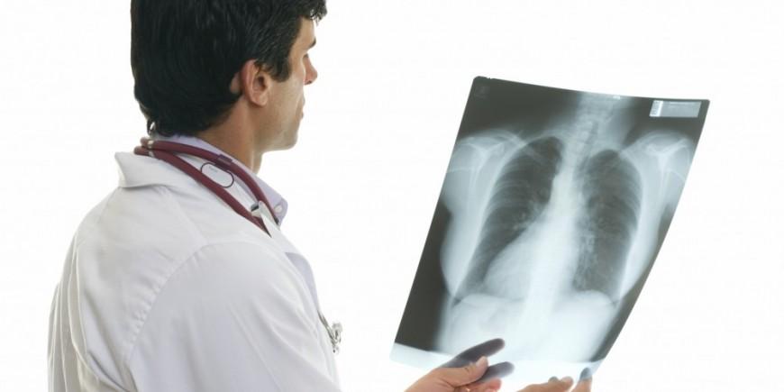 nach husten schmerzen unter der rechten brust