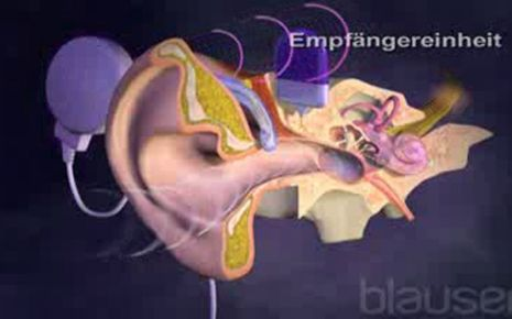 Cochlea Implantat Video