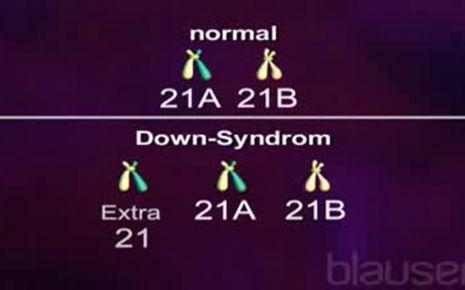 Down-Syndrom Video