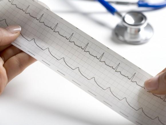 Das Bild zeigt den Ausschnitt eines EKGs.