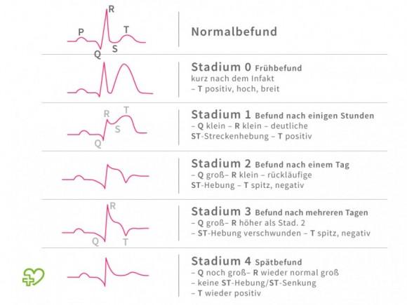 Eine schematische Darstellung eines EKGs.