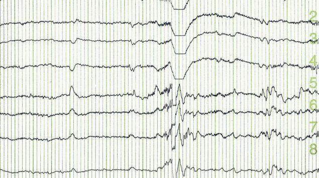 Man sieht den Ausdruck eines Elektroenzephalogramms.