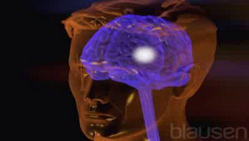 Epilepsie Video