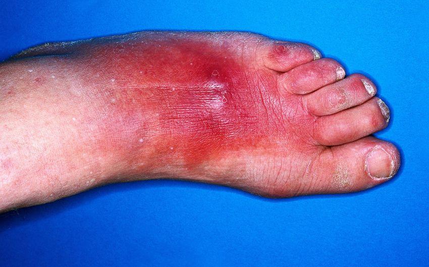 Das Bild zeigt eine bakterielle Enzündung der Haut (Erysipel).