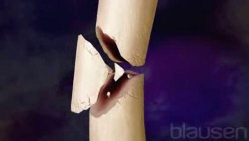 Frakturen Teil 1 Video