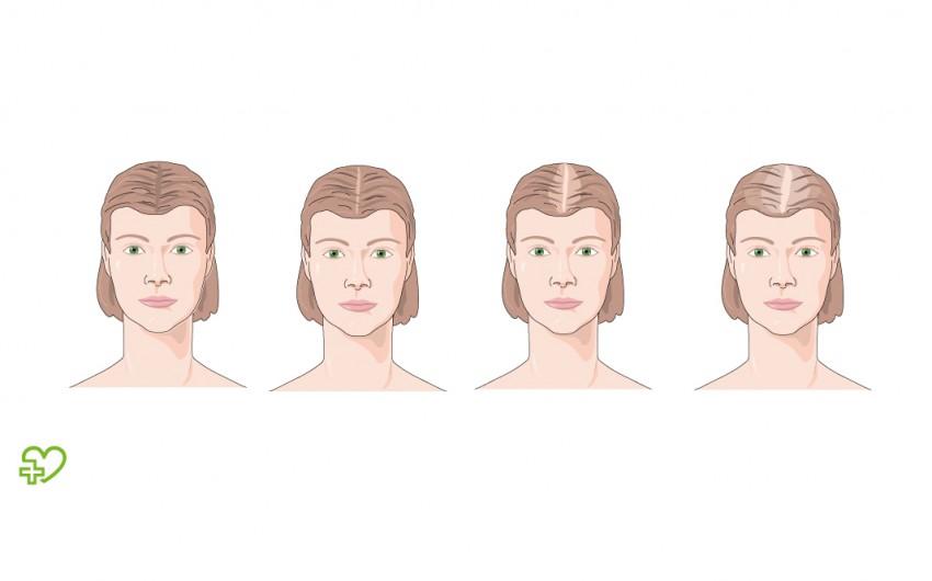 Androgenetische Alopezie: Typisches Muster bei Frauen