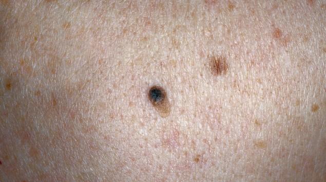 Das Bild zeigt das Frühstadium eines Hauttumors.