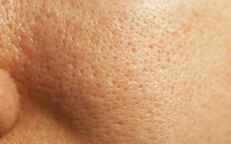 Fettige Haut: Grobporige Haut im Gesicht in der Nahaufnahme.
