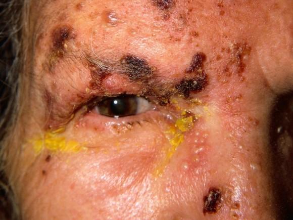 Das Bild zeigt eine Gürtelrose im Gesicht eines älteren Mannes.