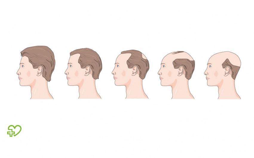 Verlauf des Haarsausfalls bei einem Mann