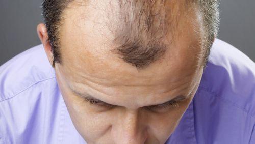 Kopf eines Mannes mit Haarausfall von oben betrachtet