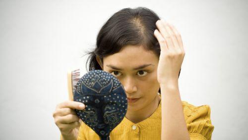 Frau mit Haarausfall betrachtet ihren Scheitel.