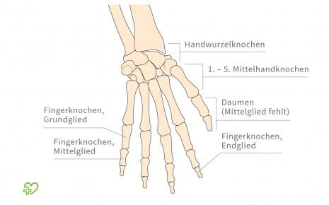 Das Skelett Hand - Onmeda.de