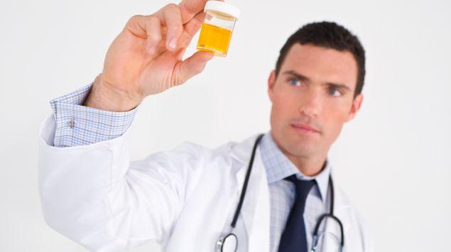 Das Bild zeigt einen Arzt, der eine Urinprobe in der Hand hält.