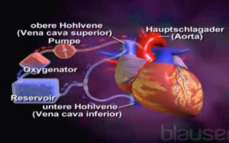 Herz-Lungen-Maschine - Onmeda.de