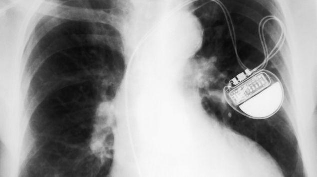 Das Bild zeigt ein Röntgenbild eines Herzschrittmachers.