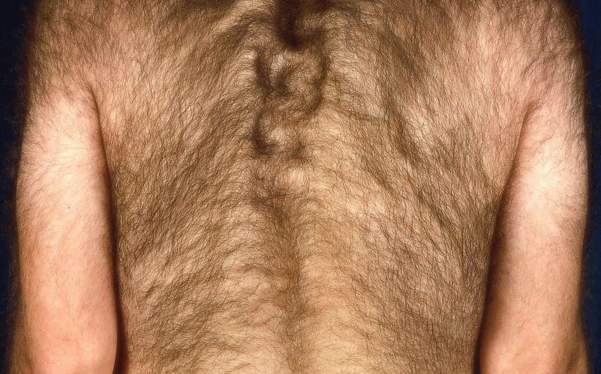 Man sieht einen Mann mit Hypertrichose.