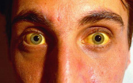 Im Rahmen einer Gelbsucht kommt es zu einer Gelbfärbung der Augen. © Vincent Zuber/CMSP/OKAPIA